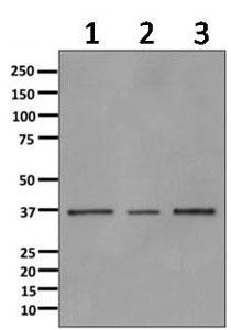 Western blot - Anti-ANXA9 antibody [EPR11220] (ab166621)