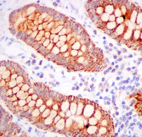 Immunohistochemistry (Formalin/PFA-fixed paraffin-embedded sections) - Anti-TST antibody [EPR11646(B)] (ab166625)