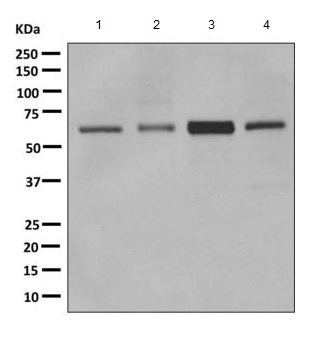 Western blot - Anti-CDR2 antibody [EPR9465(2)] (ab166629)