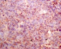 Immunohistochemistry (Formalin/PFA-fixed paraffin-embedded sections) - Anti-Phospholipase A2 X antibody [EPR11202] (ab166634)