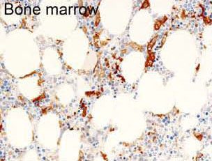 Immunohistochemistry (Formalin/PFA-fixed paraffin-embedded sections) - Anti-MASTL antibody [RIPLY 74C] (ab166647)