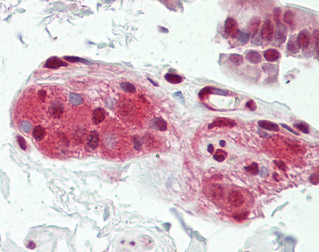Immunohistochemistry (Formalin/PFA-fixed paraffin-embedded sections) - Anti-Cdc37 antibody - N-terminal (ab166723)