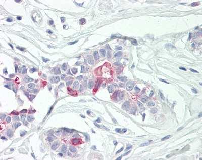 Immunohistochemistry (Formalin/PFA-fixed paraffin-embedded sections) - Anti-TNFAIP8 antibody (ab166804)