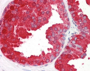 Immunohistochemistry (Formalin/PFA-fixed paraffin-embedded sections) - Anti-Prostatic Acid Phosphatase antibody (ab166825)