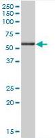 Western blot - Anti-Annexin A11 antibody (ab166846)