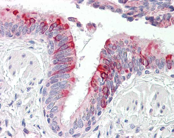 Immunohistochemistry (Formalin/PFA-fixed paraffin-embedded sections) - Anti-RPLP2 antibody (ab166872)