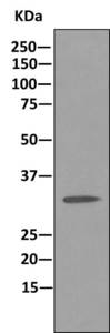 Immunoprecipitation - Anti-U1A antibody [EPR10632] (ab166890)