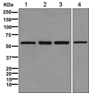 Western blot - Anti-TCP1 eta antibody [EPR10944(B) ] (ab166891)