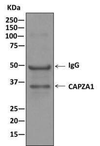 Immunoprecipitation - Anti-CAPZA1 antibody [EPR11210] (ab166892)