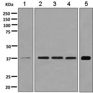 Western blot - Anti-Cathepsin V antibody [EPR10723(B) ] (ab166894)
