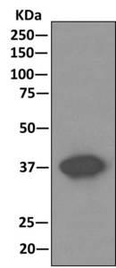 Immunoprecipitation - Anti-Cathepsin V antibody [EPR10723(B) ] (ab166894)
