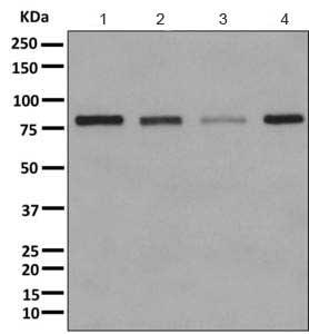 Western blot - Anti-beta glucuronidase (GUSB) antibody (ab166904)