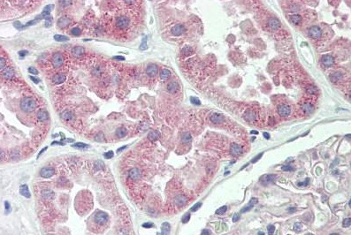 Immunohistochemistry (Formalin/PFA-fixed paraffin-embedded sections) - Anti-Spectrin beta 5 antibody (ab167044)