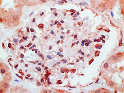 Immunohistochemistry (Formalin/PFA-fixed paraffin-embedded sections) - Anti-CMKLR1 antibody [1A7] (ab167097)