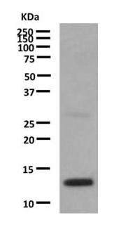 Western blot - Anti-IL3 antibody [EPR7964] (ab167159)