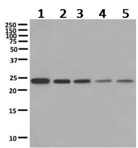 Western blot - Anti-VPS28 antibody [EPR9881(B)] (ab167172)