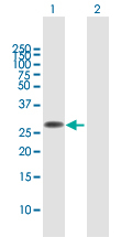Western blot - Anti-FAM60A antibody (ab167180)
