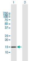 Western blot - Anti-DNAJC15 antibody (ab167199)