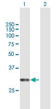 Western blot - Anti-CACNG6 antibody (ab167200)