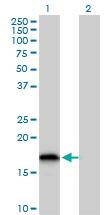 Western blot - Anti-Glutaredoxin 2 antibody (ab167207)