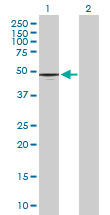 Western blot - Anti-CD177 antibody (ab167226)