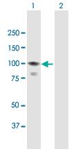 Western blot - Anti-CoCoA antibody (ab167237)