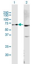 Western blot - Anti-ABCB9 antibody (ab167259)