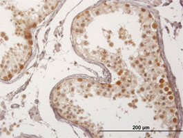 Immunohistochemistry (Formalin/PFA-fixed paraffin-embedded sections) - Anti-FBXO7 antibody (ab167278)