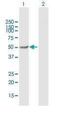 Western blot - Anti-MGAT1 antibody (ab167365)