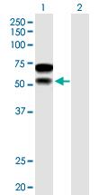 Western blot - Anti-CHD2 antibody (ab167377)
