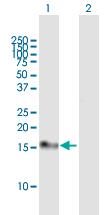 Western blot - Anti-Calcipressin 1 antibody (ab167378)