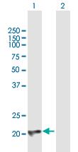 Western blot - Anti-CBFb antibody (ab167382)