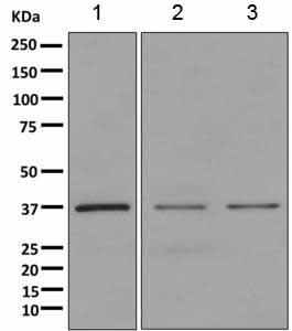 Western blot - Anti-ANXA9 antibody [EPR11220-11] (ab167402)