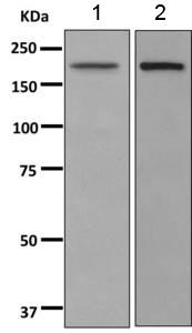 Western blot - Anti-POGZ antibody [EPR10612] (ab167408)