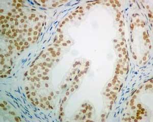 Immunohistochemistry (Formalin/PFA-fixed paraffin-embedded sections) - Anti-POGZ antibody [EPR10612] (ab167408)