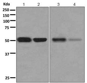 Western blot - Anti-alpha 1 Antitrypsin antibody [EPR10832(B)] (ab167414)