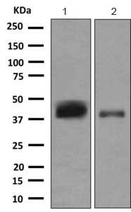 Western blot - Anti-CD1c antibody [EPR9638] (ab167419)
