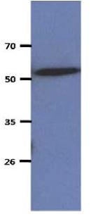 Western blot - Anti-CNDP2 antibody [AT15E5] (ab167468)