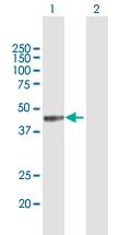 Western blot - Anti-MICB antibody (ab167488)