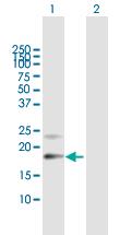 Western blot - Anti-Prostaglandin D Synthase (Lipocalin) antibody (ab167498)
