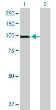 Western blot - Anti-ATP2C1 antibody (ab167509)