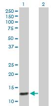 Western blot - Anti-MRP6 antibody (ab167564)