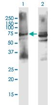 Western blot - Anti-Muscarinic Acetylcholine Receptor M3 antibody (ab167566)