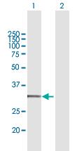 Western blot - Anti-CYC1 antibody (ab167568)