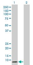 Western blot - Anti-alpha 5 Defensin antibody (ab167591)