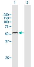 Western blot - Anti-YL1 antibody (ab167639)