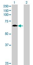 Western blot - Anti-GALNT4 antibody (ab167648)