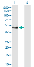 Western blot - Anti-Tensin 1 antibody (ab167660)