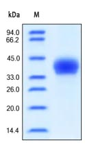 SDS-PAGE - CD23 protein (Active) (ab167725)