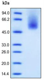 SDS-PAGE - CD66b protein (His tag) (ab167763)